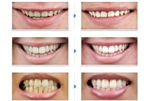 Teeth Whitening at Harley Street - Teeth Whitening Gifts